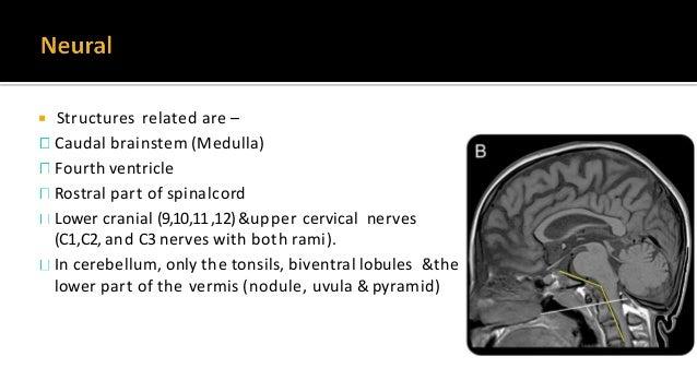  Congenital- Malformation of occipital sclerotomes Clivus segmentation anomalies Condylar hypoplasia Assimilation ofat...