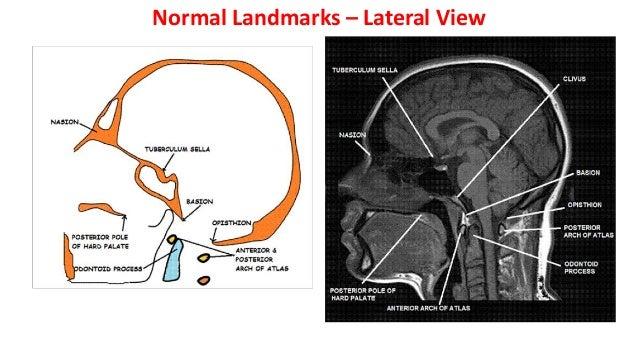  Developmental andacquired foramen magnum-stenosis Sec.basilar invagination- Atlantoaxial instability Spontaneous rotator...