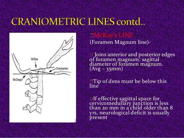 McRae's LINE  (Foramen Magnum line)-  Joins anterior and posterior edges  of foramen magnum: sagittal  diameter of foramen...
