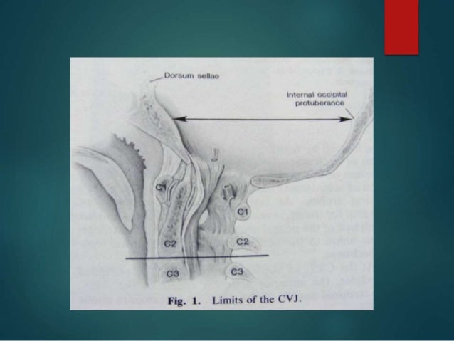 Craniovertebral junction anatomy