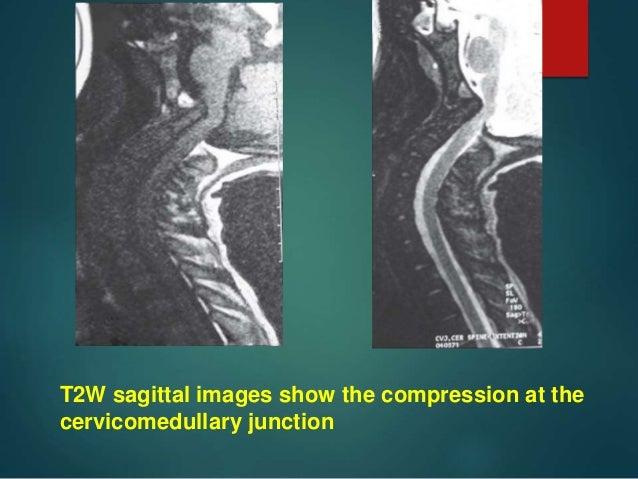 Craniovertebral Junction Anatomy Craniometry Anamolies And Radiolog
