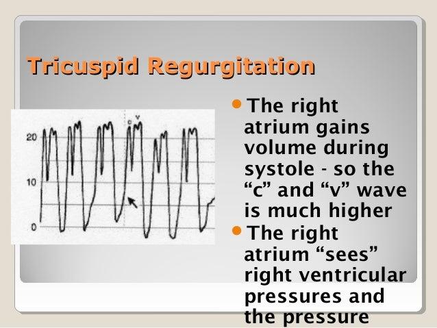 Cvp Central Venous Pressure Monitoring