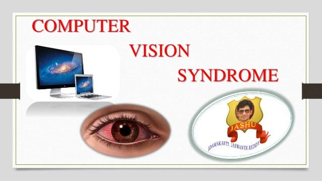 thesis on computer vision syndrome Computer vision syndrome (cvs) is a term used to describe problems that can  result from prolonged computer use as many as 75% of computer users suffer.