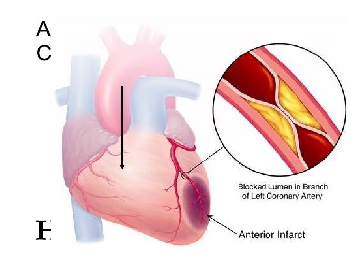 how to avoid coronary heart disease