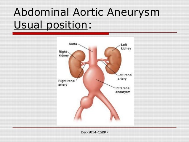 Cvs aneurysms dissection csbrp for Abdominal aortic aneurysm mural thrombus