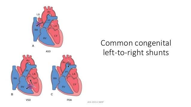 Common congenital left-to-right shunts JAN-2015-CSBRP