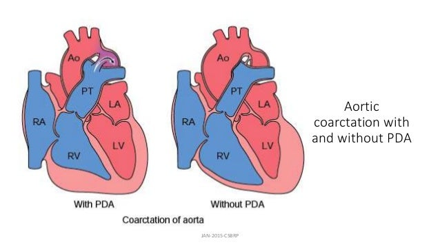 Aortic coarctation with and without PDA JAN-2015-CSBRP