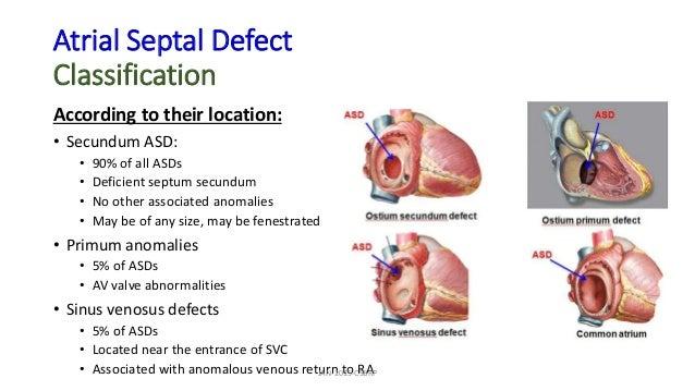 Atrial Septal Defect Classification According to their location: • Secundum ASD: • 90% of all ASDs • Deficient septum secu...