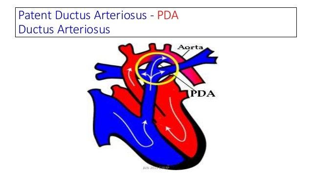 Patent Ductus Arteriosus - PDA Ductus Arteriosus JAN-2015-CSBRP