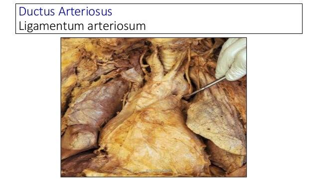 Ductus Arteriosus Ligamentum arteriosum JAN-2015-CSBRP