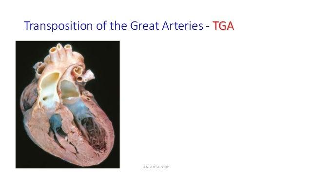 Transposition of the Great Arteries - TGA JAN-2015-CSBRP