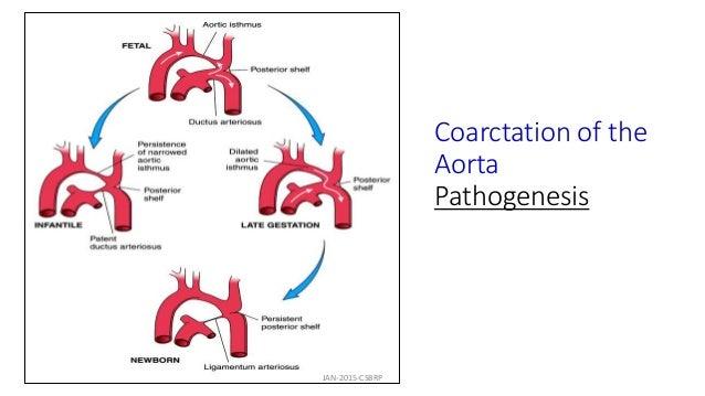 Coarctation of the Aorta Pathogenesis JAN-2015-CSBRP