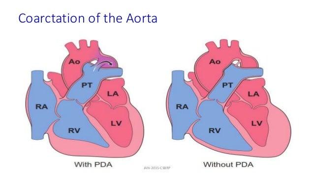 Coarctation of the Aorta JAN-2015-CSBRP