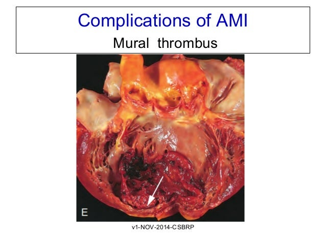 Cvs lab dxami csbrp for Apical mural thrombus