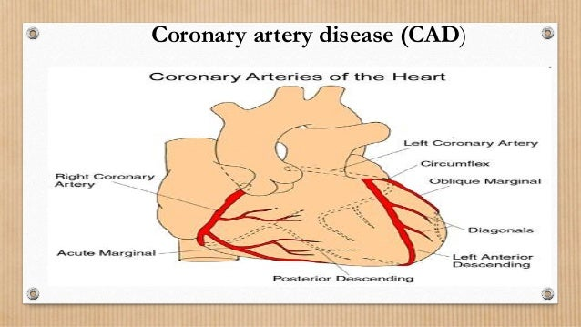 Cad coronary artery disease coronary heart