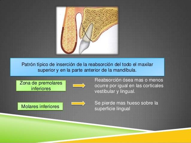 La osteocondrosis la causa de la artrosis de los dedos de las manos