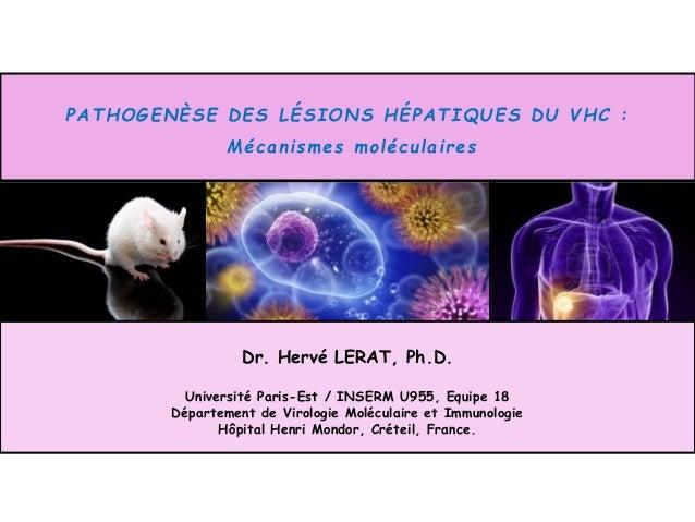 PATHOGENÈSE DES LÉSIONS HÉPATIQUES DU VHC : Mécanismes moléculaires Dr. Hervé LERAT, Ph.D. Université Paris-Est / INSERM U...