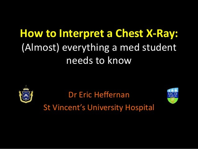 How to Interpret a Chest X-Ray: (Almost) everything a med student needs to know Dr Eric Heffernan St Vincent's University ...