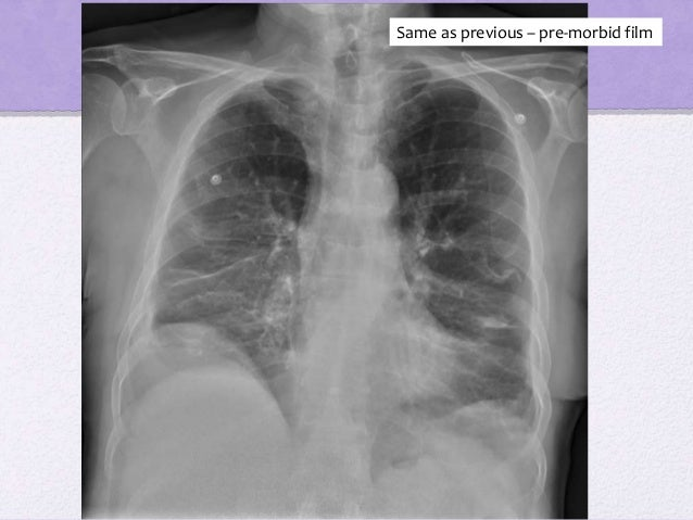 what does the medical term cxr mean