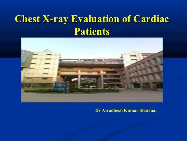 Chest X-ray Evaluation of Cardiac            Patients                 Dr Awadhesh Kumar Sharma,