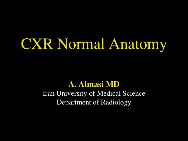 CXR Normal Anatomy A. Almasi MD Iran University of Medical Science Department of Radiology