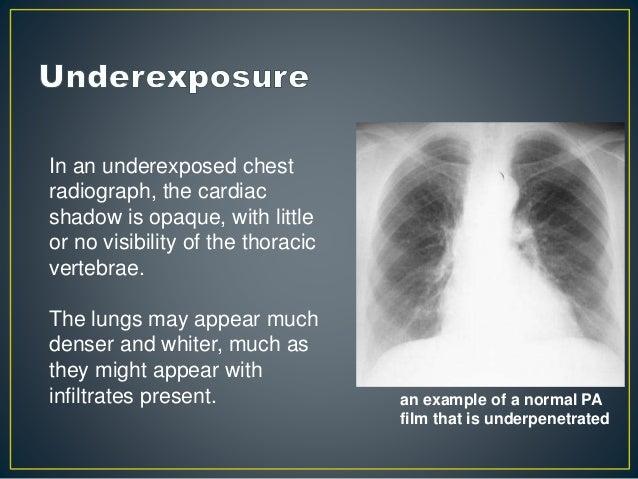 Chest x ray - basics