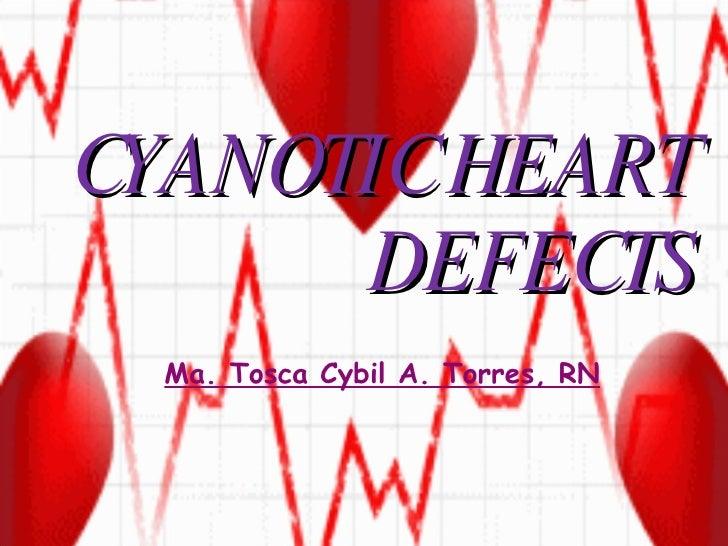 CYANOTIC HEART DEFECTS Ma. Tosca Cybil A. Torres, RN