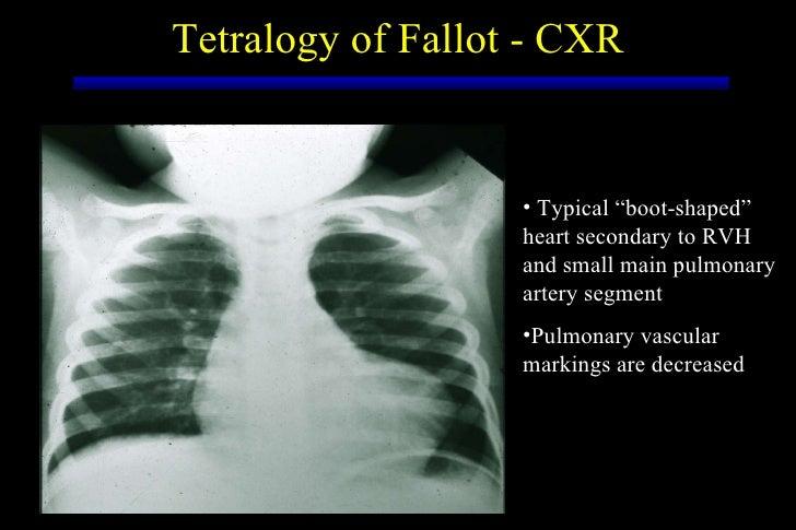 Cyanotic Heart Disease
