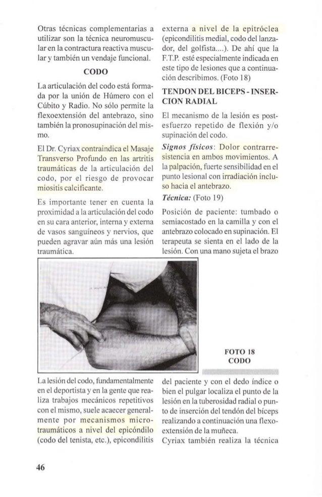 FOTO 19  TENDON DEL BICEPS  INSERCION RADIAL  cogiendo con una mano el antebrazo  del paciente a la altura de la muñeca  y...