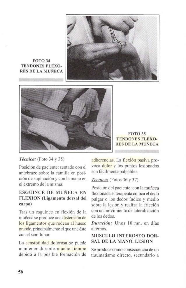 FOTO 36  ESGUINCE DE MUÑECA  EN FLEXIÓN  mano del paciente que se encuentra  apoyada sobre la camilla. La F.T.P.  se aplic...