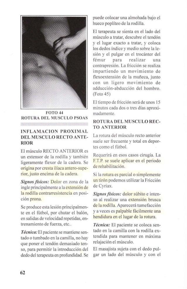 FOTO 45  INFLAMACION  PROXIMAL DEL  MUSCULO RECTO  ANTERIOR  índice y el medio el lado contralateral  e imprime un movimi...