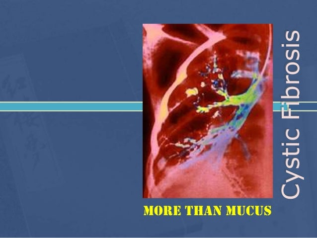 Cystic Fibrosis More than mucus