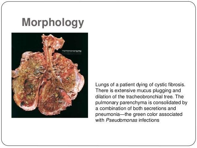 21 - Cystic Fibrosis Color