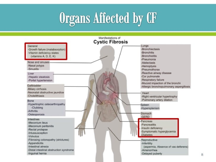 Cystic Fibrosis Nutritional Case Study Presentation