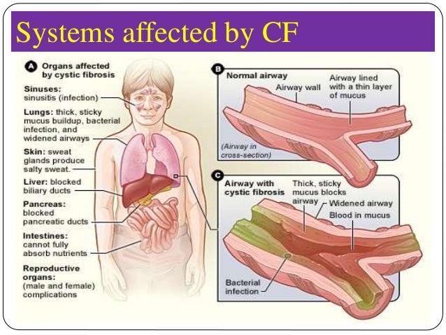 cystic fibrosis symptoms in adults