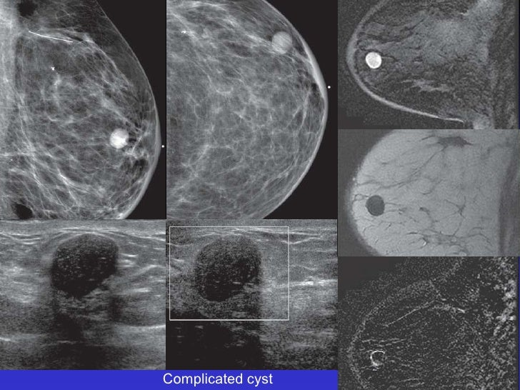 Cystic masses of the breast by xiu for Echogenic mural nodule