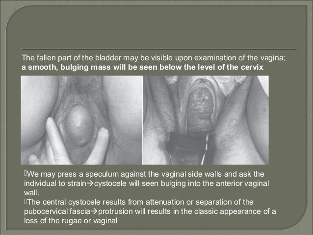 Cystocele Physical Examination