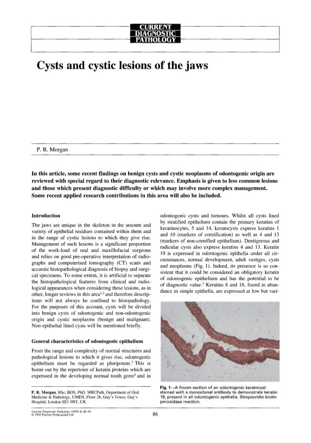 9 D][:Ir162 Ii[ I                                                    PATHOLOGY    Cysts and cystic lesions of the jaws   P...