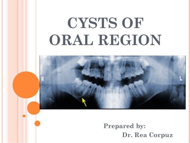 CYSTS OFORAL REGION     Prepared by:          Dr. Rea Corpuz