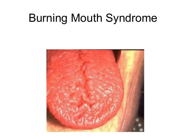 Difficulty Eating Solid Foods