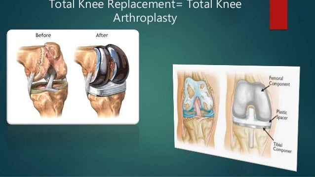 Total knee replacement 1 total knee replacement total knee arthroplasty ccuart Image collections
