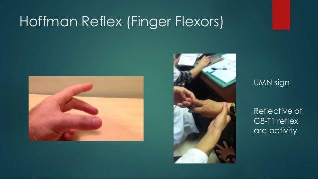 Forgotten Reflex Testing