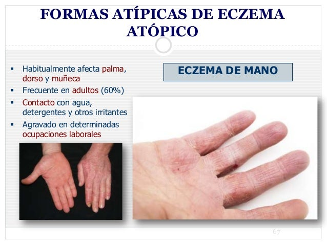 Atopichesky la dermatitis sobre las palmas y las plantas