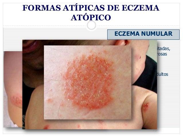Atopichesky la dermatitis a mensual