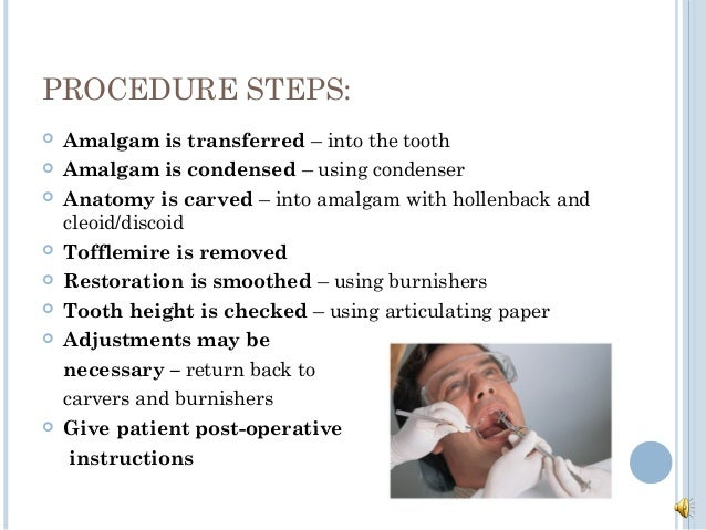 post operative instructions for amalgam restoration