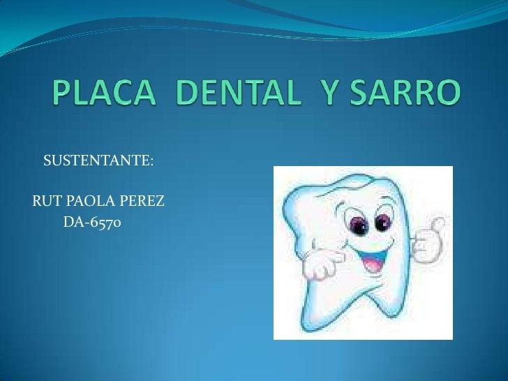 PLACA  DENTAL  YSARRO<br />   SUSTENTANTE:<br />RUT PAOLA PEREZ<br />        DA-6570<br />