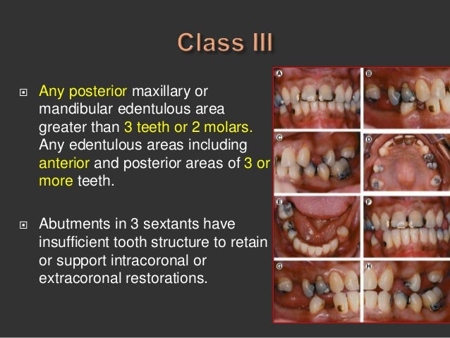 diagnosis and treatment planning in removable partial denture
