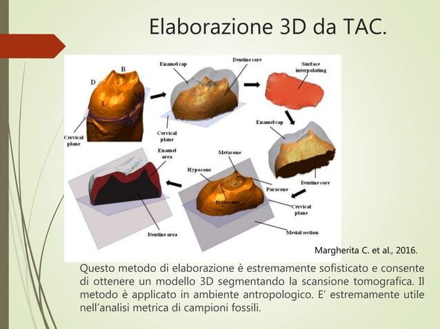 Elaborazione 3D da TAC. Questo metodo di elaborazione è estremamente sofisticato e consente di ottenere un modello 3D segm...