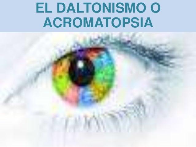 EL DALTONISMO O ACROMATOPSIA