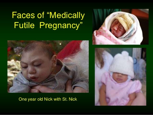 ―So what if abortion ends life?‖ ―. . . the fetus is indeed a life. A life worth sacrificing.‖ By Mary Elizabeth Williams ...